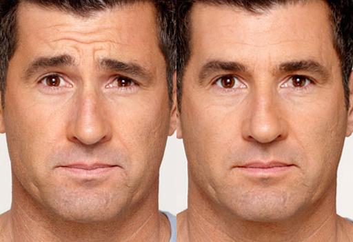 Male Plastic Surgery In Orange County Finesse Plastic Surgery