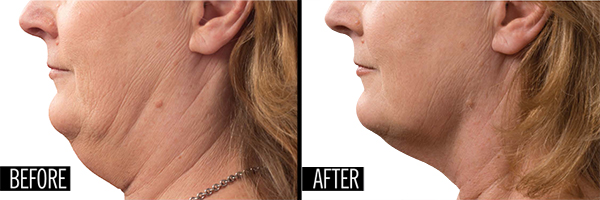 Kybella vs CoolMini  Which Double Chin Treatment is Best?