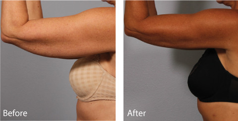 Female Coolsculpting Results 1