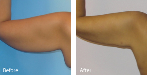 Male Coolsculpting Results 1