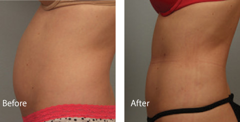 Male Coolsculpting Results 2