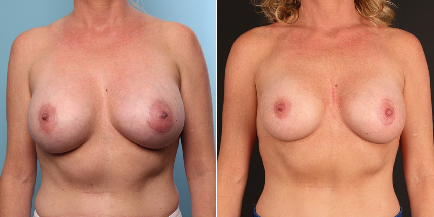 Orange County Breast Implant Removal 1