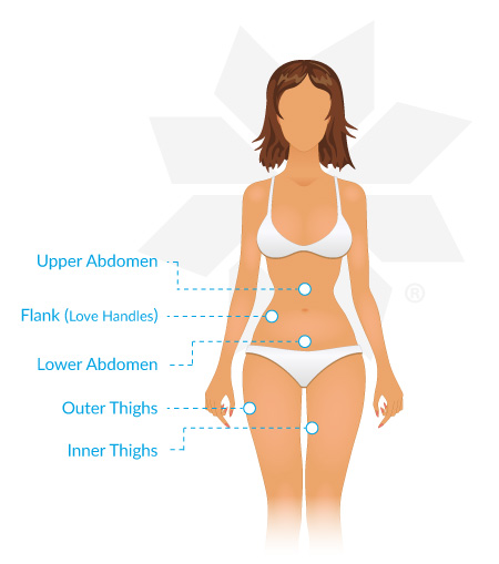 Female Coolsculpting Treatment Areas