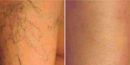 Spider Veins Results 3