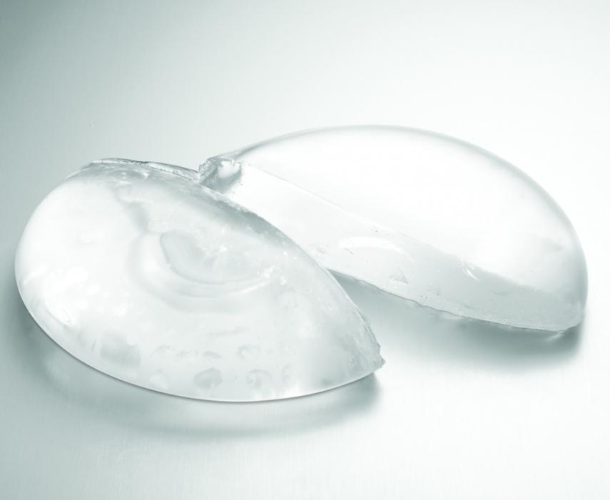 MRI SCREENING FOR RUPTURED BREAST IMPLANT