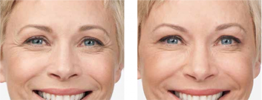 Wrinkle Treatment Options