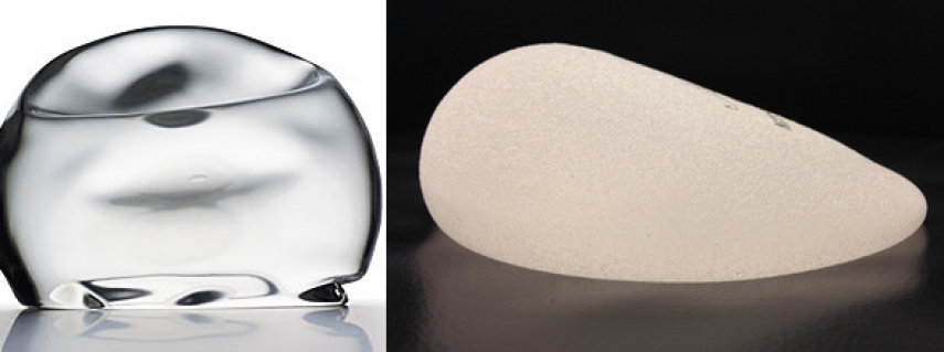 Shaped Implants vs. Round Implants