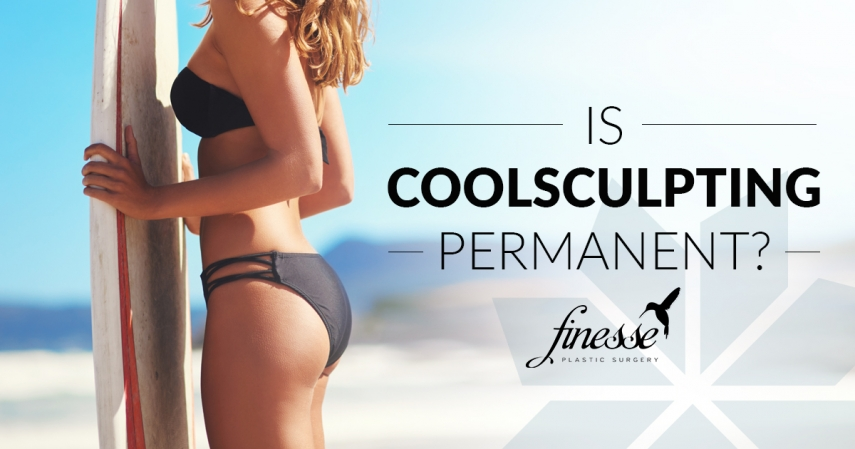 Is CoolSculpting Permanent?