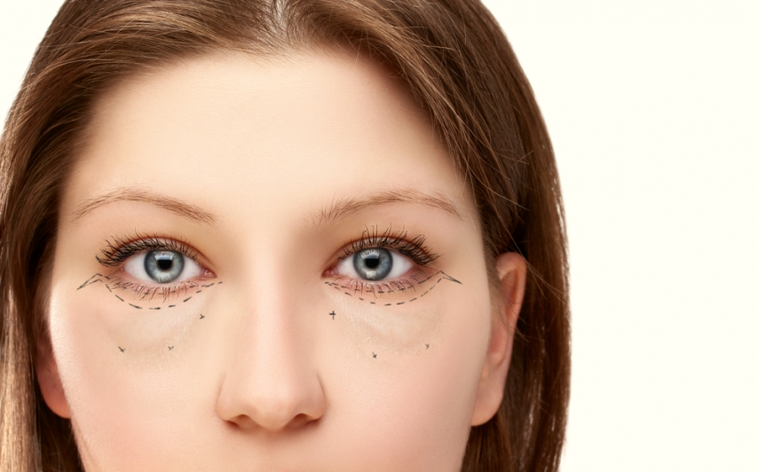 Is Preventative Botox Right for You?